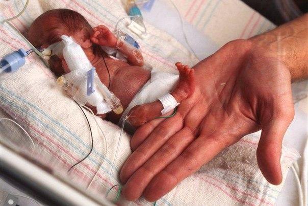 Болезнь Бехтерева угрожает маловесным младенцам