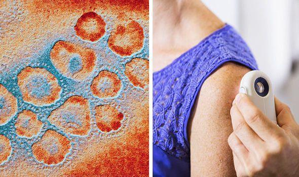 Вирус герпеса поможет в лечении рака кожи