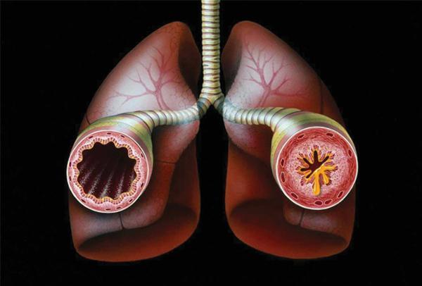 Ученые нашли новый препарат для лечения бронхиальной астмы
