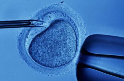 Ученые усовершенствовали метод экстракорпорального оплодотворения