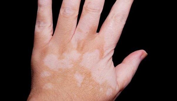 Препарат, применяющийся для лечения артрита, может быть использован при лечении витилиго