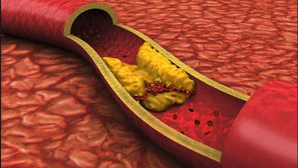Визуализация атеросклероза