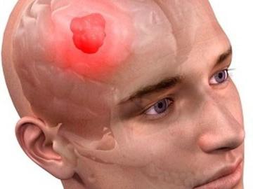 Ученые научились побеждать самый агрессивный вид рака
