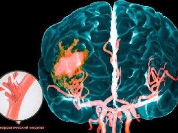 Инсульт вызывает старение мозга